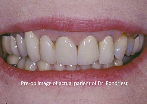 Patient want dental bridges