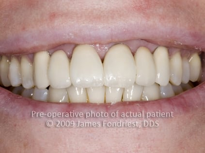 opaque porcelain bridgework, correction of angled teeth, unnatural dentistry bridges