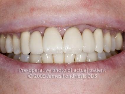 opaque porcelain bridgework, correction of angled teeth, unnatural dentistry bridges