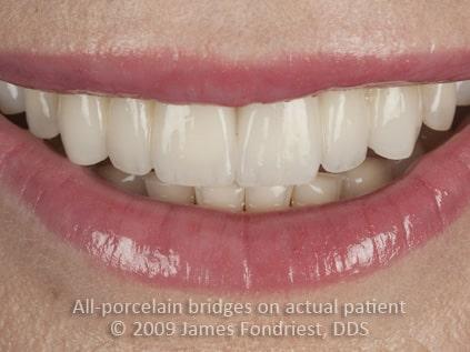Zirconium dental bridgework, zirconium bridge, dental bridge before and after
