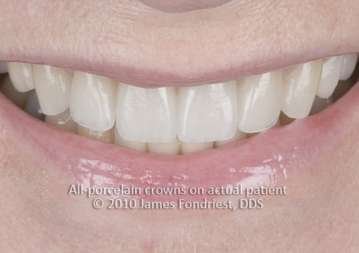 Image of E Max porcelain crowns