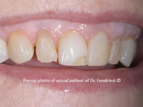 Before Minimal Preparation Dental Veneers