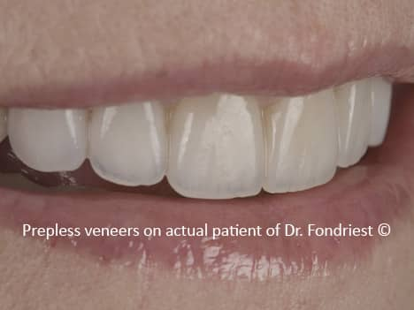 After Preserving Tooth Structure With Less Preparation
