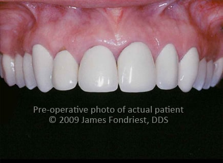 Opaque crowns with black lines, ugly crowns, unhappy Lake Forest resident
