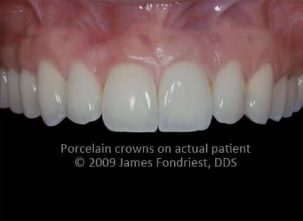 Procera crowns, aluminum oxide based crowns, aluminum oxide copings
