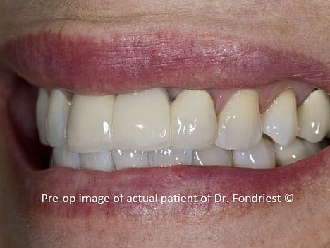 Opaque dental bridge, Northbrook, Ilinois resident