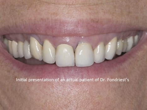 Patient needing reconstructive dentistry, Gummy smile