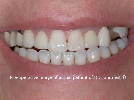 This patient had several new crowns done that were opaque and un-natural.  Some of the new crowns already had recession and the dark metal was showing at the gumlines. The treating general dentist had no idea how to replace the missing tooth and to fill in the boney defect on the patient's upper left.  After getting many consultations, a dental specialist referred this northshore chicago patient to us. See the before and after.