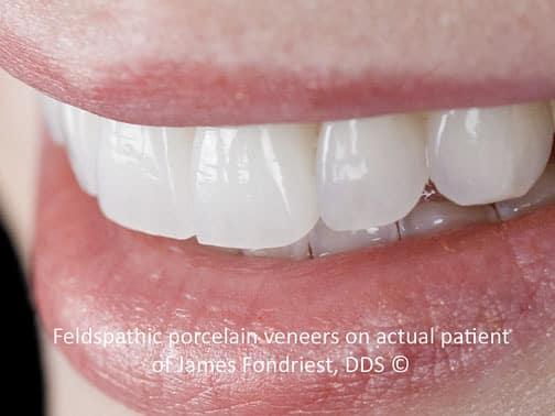 Types And Uses Of Porcelain Veneers