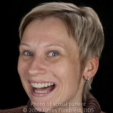 straighten teeth with veneers, veneers to shape teeth, Northfield resident