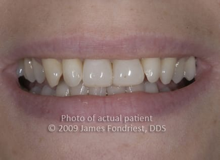 poorly done composite veneers