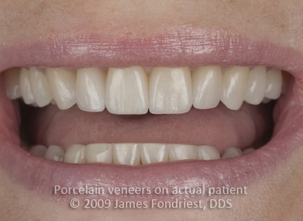 E Max porcelain veneers, Veneers as alternative to orthodontics