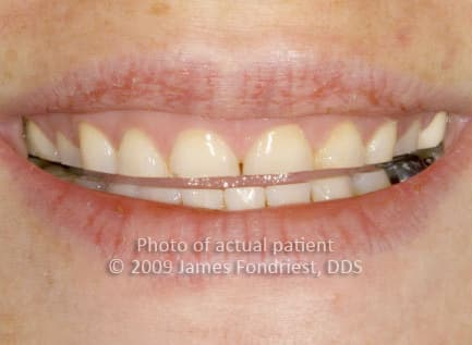 replacing tooth enamel lost from bruxism