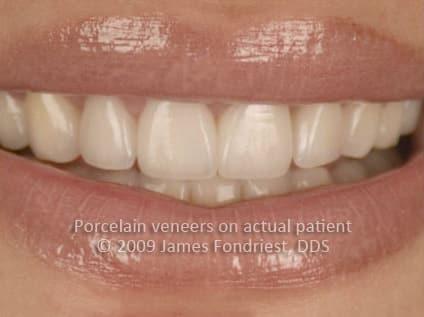 Porcelain veneers used to lengthen teeth