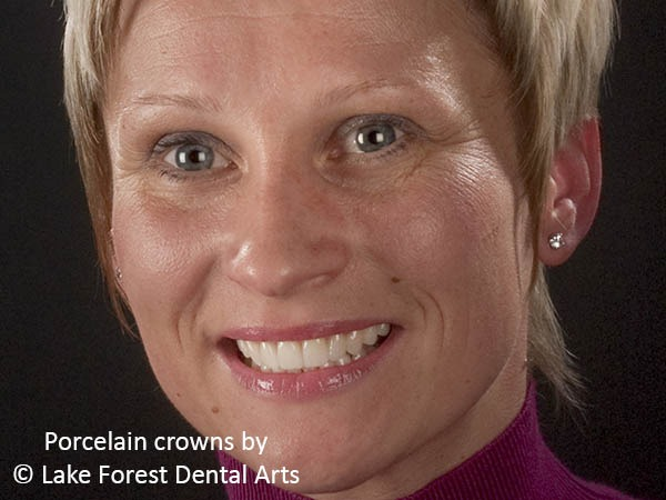 A teeth makeover gave this woman a nice smile
