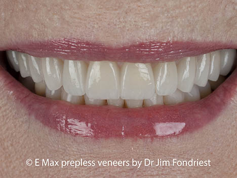 Cover stained teeth with Emax