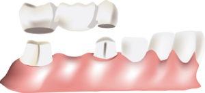 bad breath and dental bridges