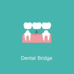 illustrated icon of dental bridge