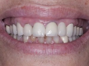 Smile Makeover - before