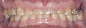 what is bruxism