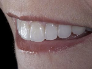 Upgrade Your Smile with porcelain veneers