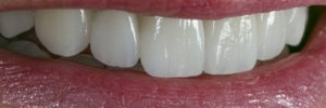 E Max Crowns that look like real teeth