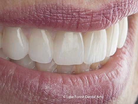 Reasons for Needing a Dental Crown