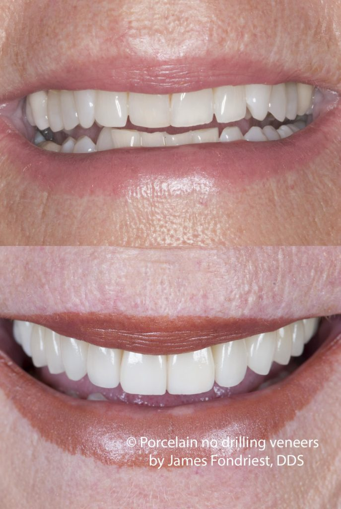 No drilling veneers