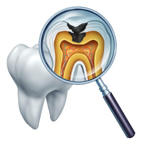 cavities occur without good cavity prevention