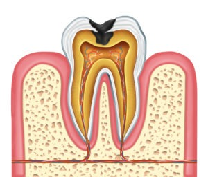 cross-section illustration of dental cavity