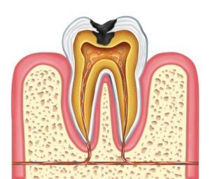 cavity repair gel in development