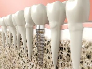 lost tooth replaced with dental implant