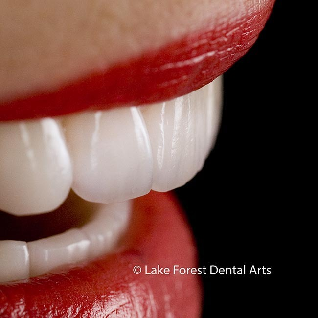 beautiful teeth crowns