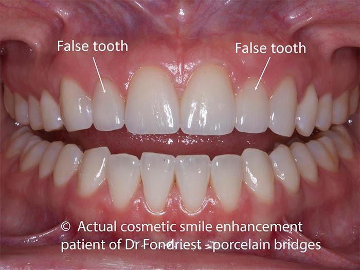 Dental bridges with ovate pontics