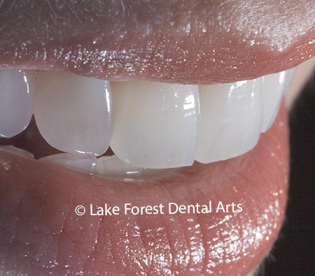 Smile correction with porcelain veneers