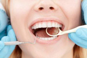 developing cavities