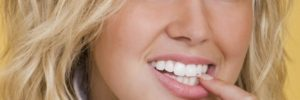Are Bonding or Veneers What Your Smile Needs?