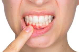 getting to know gingivitis