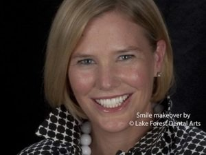 Cosmetic dentistry to look younger