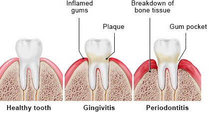 Signs and symptoms of gingivitis and gum disease