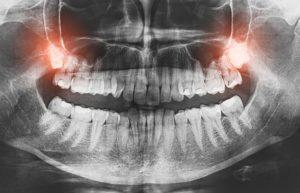 Why take out wisdom teeth?
