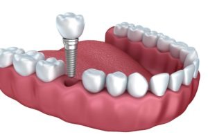 Are Dental Implants Better