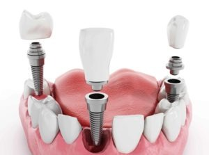 How many teeth can implants replace