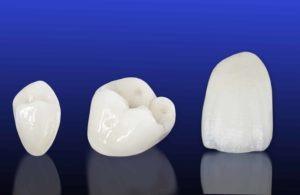 modern dental crowns