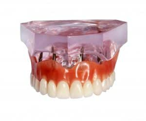Retain Your Dentures with implants