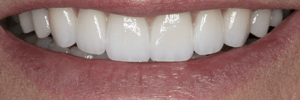 How long do veneers last?