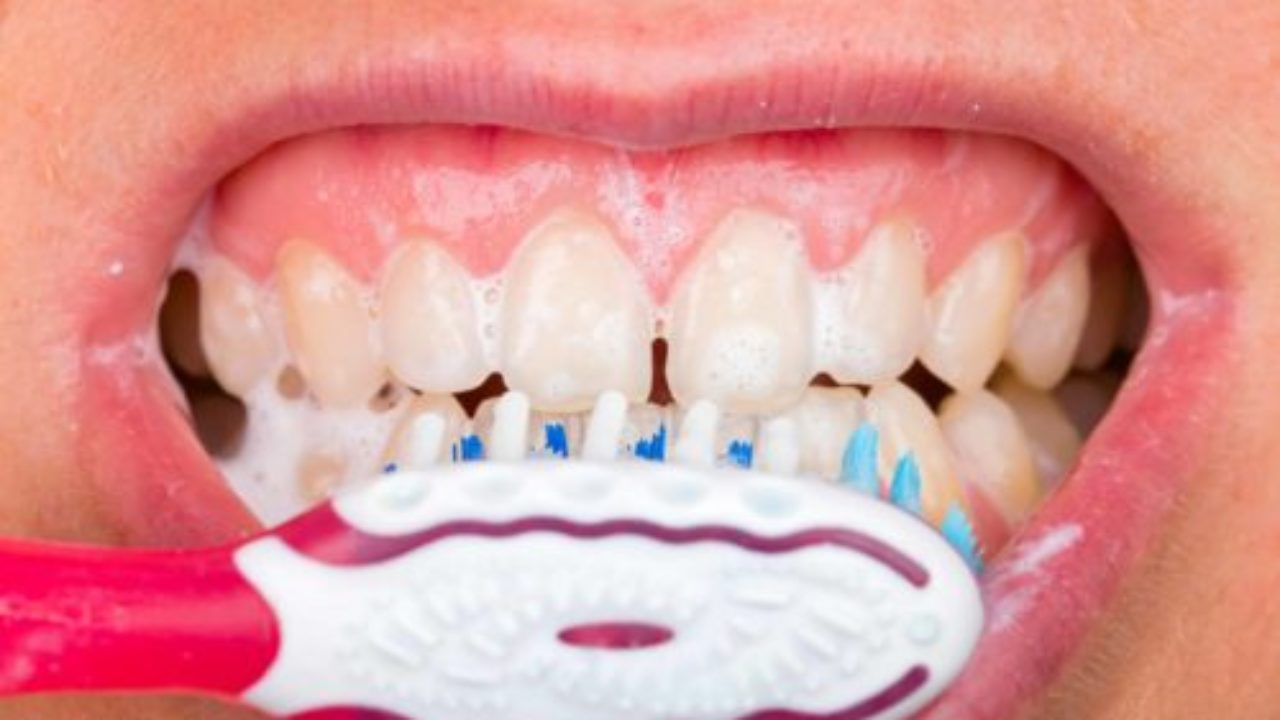 Why Bleeding Gums Are More Serious than You Might Think
