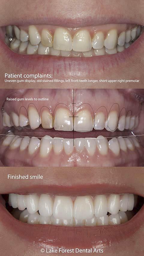 straighten crooked teeth