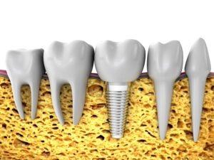 Address tooth loss