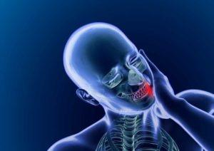 chronic jaw pain